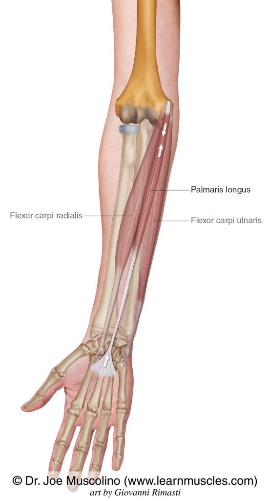 The palmaris longus of the wrist flexor group is seen. The other two muscles of the group: flexor carpi radialis and flexor carpi ulnaris have been ghosted in.