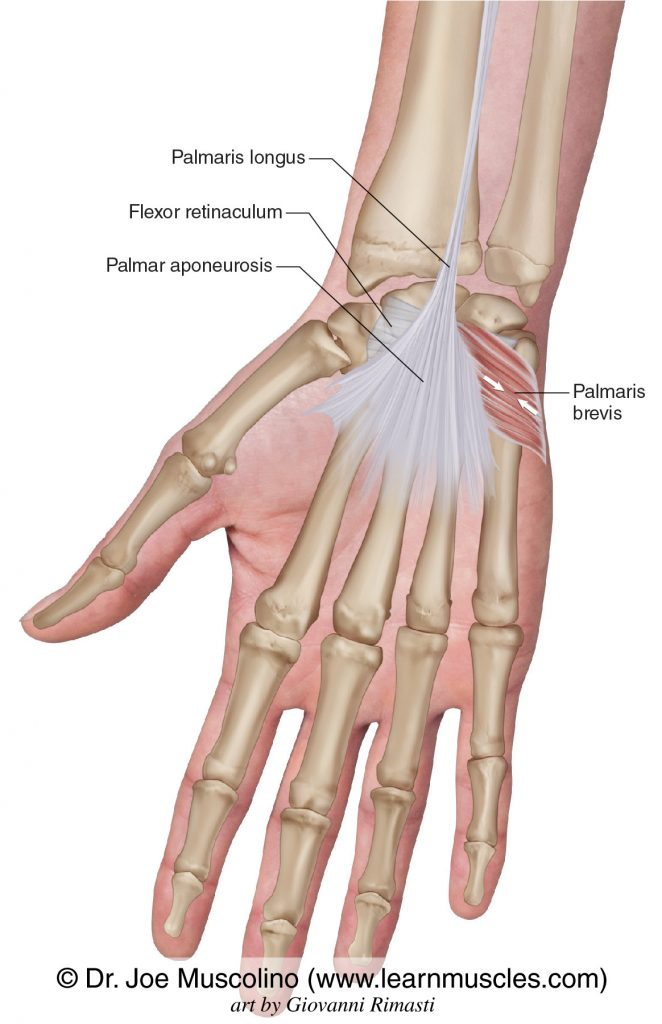 The palmaris brevis intrinsic muscle of the hand. The palmaris longus has been drawn in, as has the flexor retinaculum.