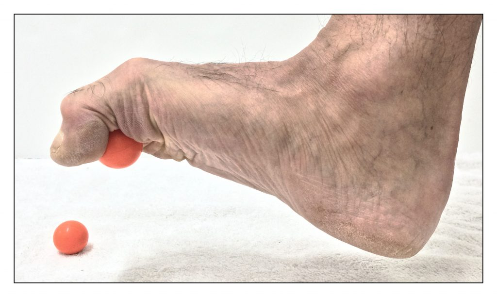 One approach for exercise for an overly pronated foot is to strengthen the plantar intrinsic musculature of the foot. Permission Dr. Joe Muscolino.